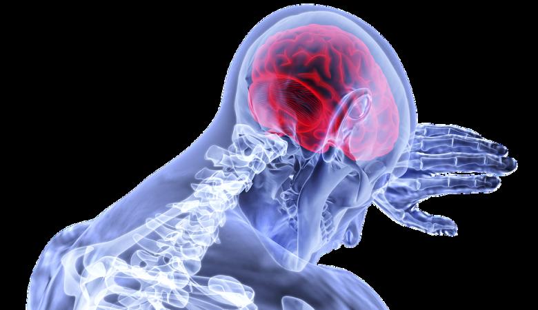 X-ray Image of Brain   Medical Negligence